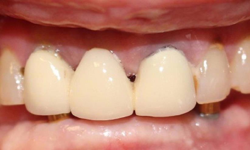 mouth missing all lower teeth, and implant posts | implant retained dentures vienna