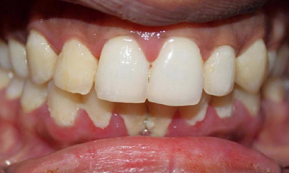 Tysons Dentistry S Smile Gallery Periodontal Treatment
