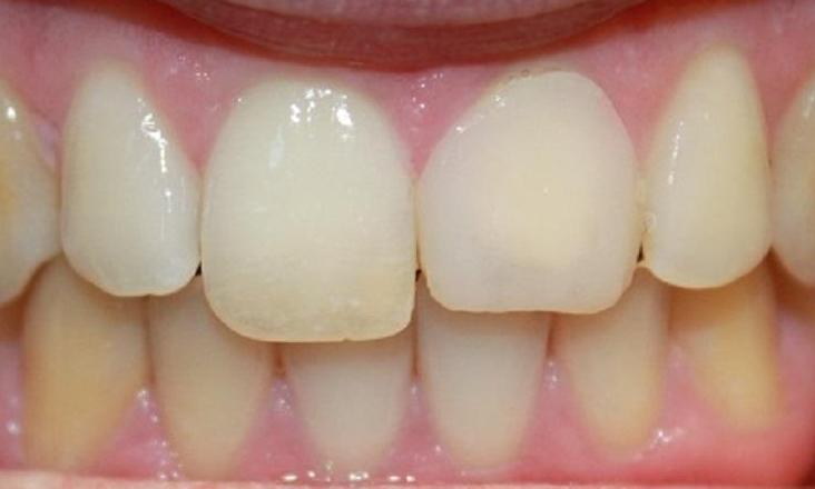 a front tooth before a porcelain crown | crowns in vienna va