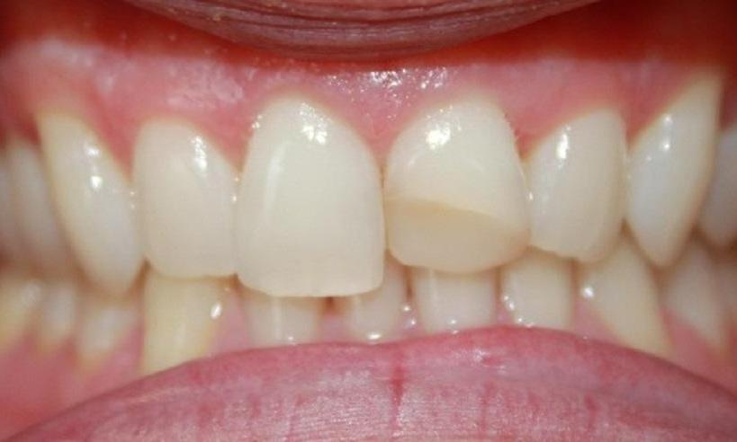 a chipped front tooth | dentist in vienna