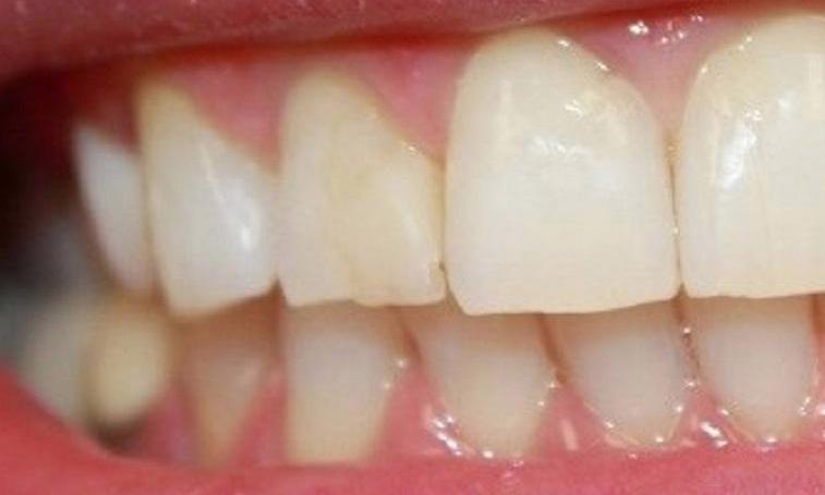 a misshapen and discolored tooth | dentist in vienna