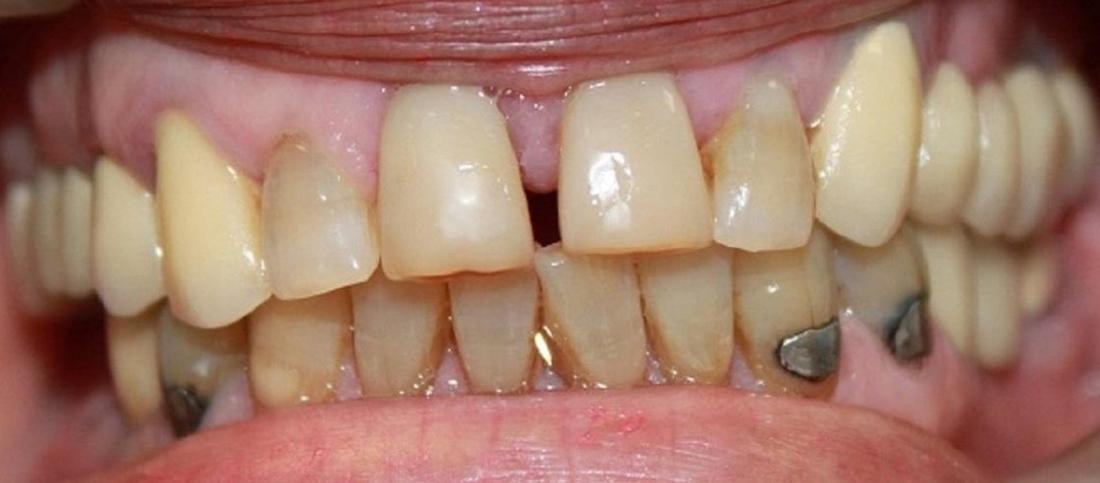 teeth before teeth whitening and porcelain crowns | dentist in vienna va