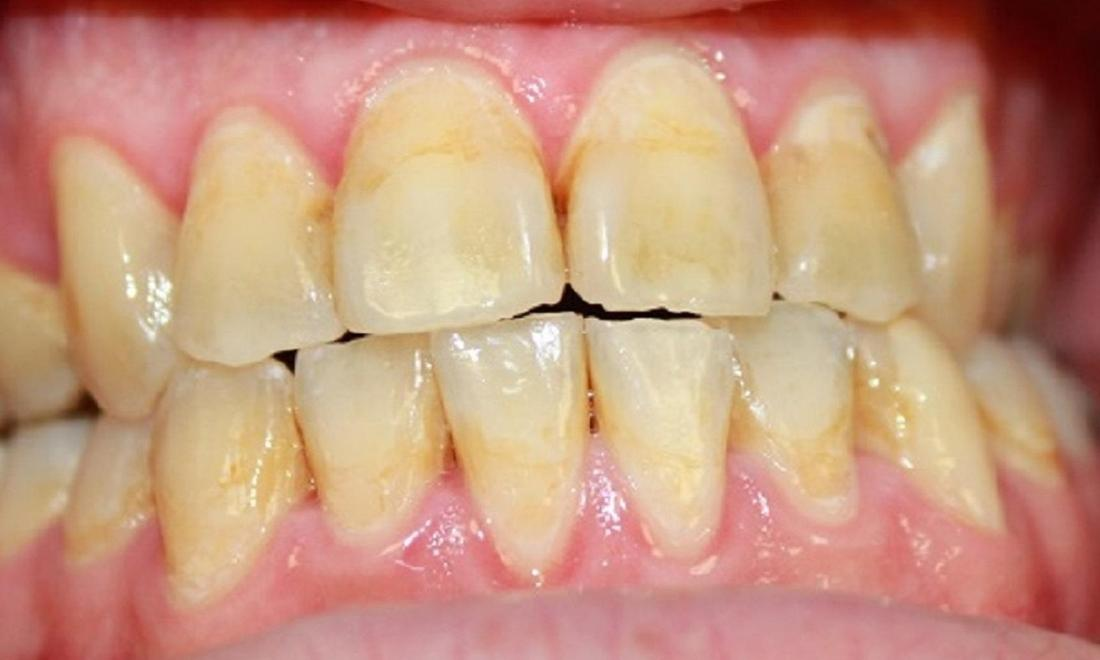 teeth before resin infiltration | dentist vienna va