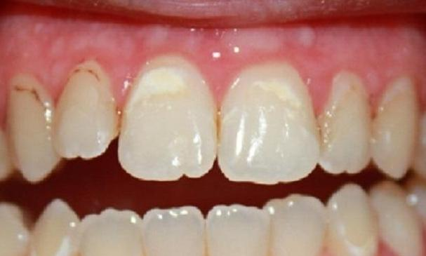 a patients mouth with de coloration due to decalcification | dentist vienna