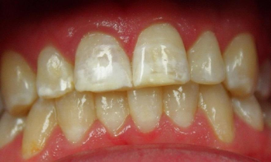 teeth with white spots | dentist in vienna