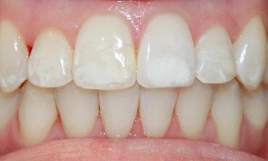 teeth with white spots | dentist in vienna va