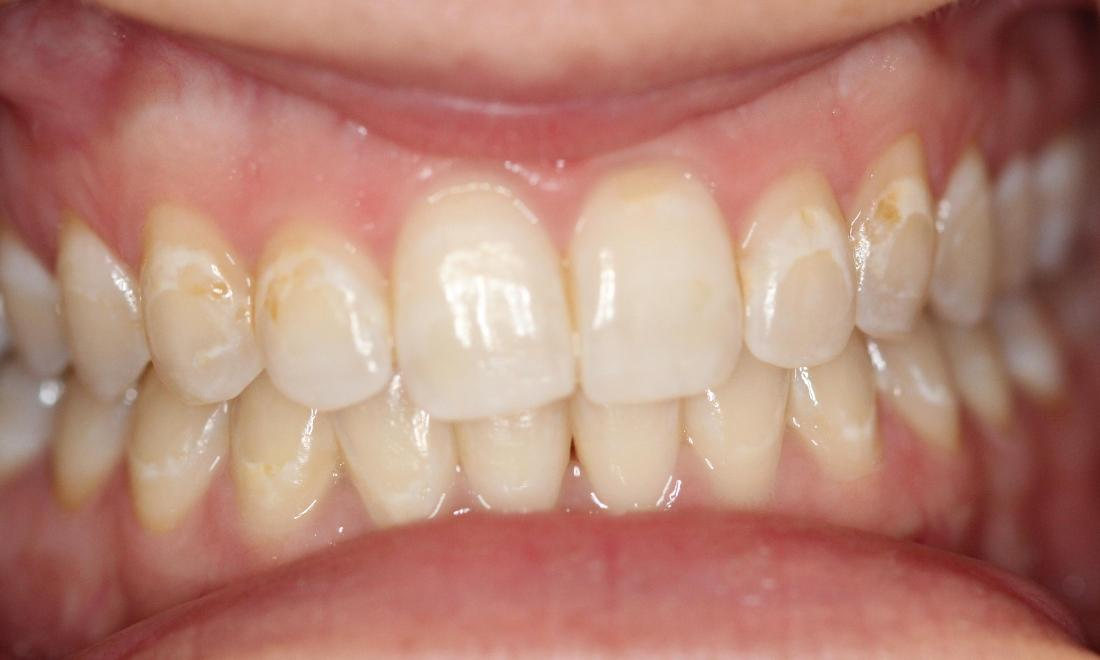 teeth featuring white spots near the gumline | dentist in vienna va