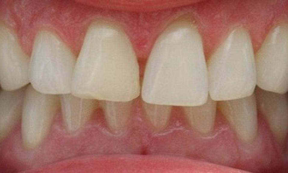 patients mouth before veneers | dental veneers vienna va