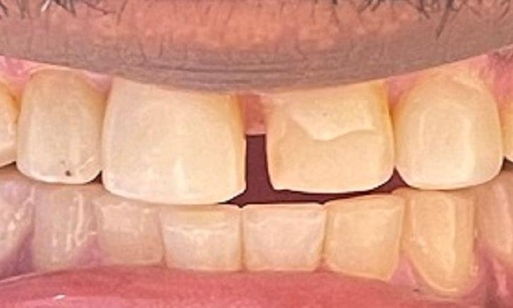 teeth before veneers at our vienna office