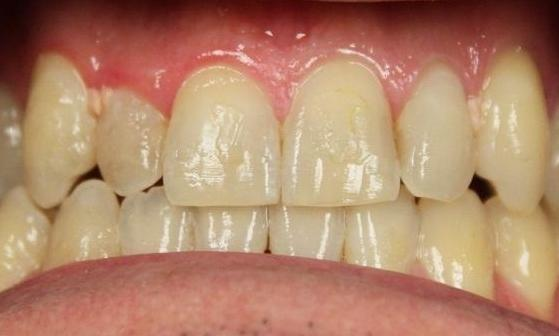 teeth prior to a zoom in-office whitening treatment | in-office teeth whitening vienna va