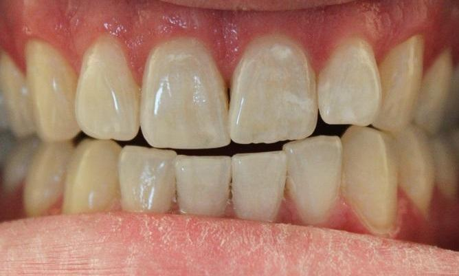 teeth prior to an in-office whitening treatment | professional teeth whitening vienna va