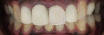 a patient with different sized dental crowns | dental crowns in vienna VA