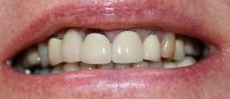 a patient with old crowns and bridge that had gaps between the gumline and the teeth | crowns and bridges vienna va