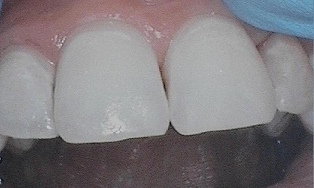teeth after getting discoloration removed post-orthodontics | dentist vienna va