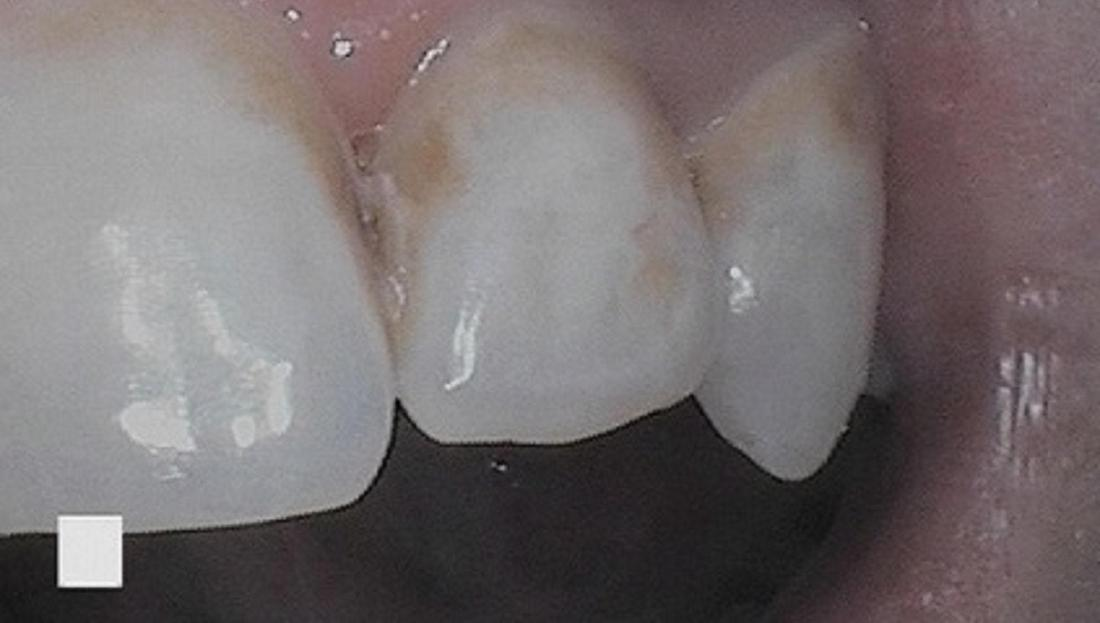 discoloration left on a patients teeth from orthodontic treatment | dentist vienna va