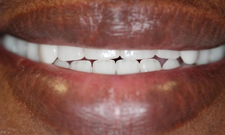 Complete-Dentures-After-Image