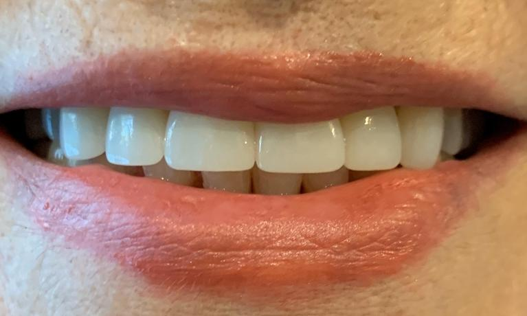 Front-Teeth-Restoration-with-Crowns-After-Image