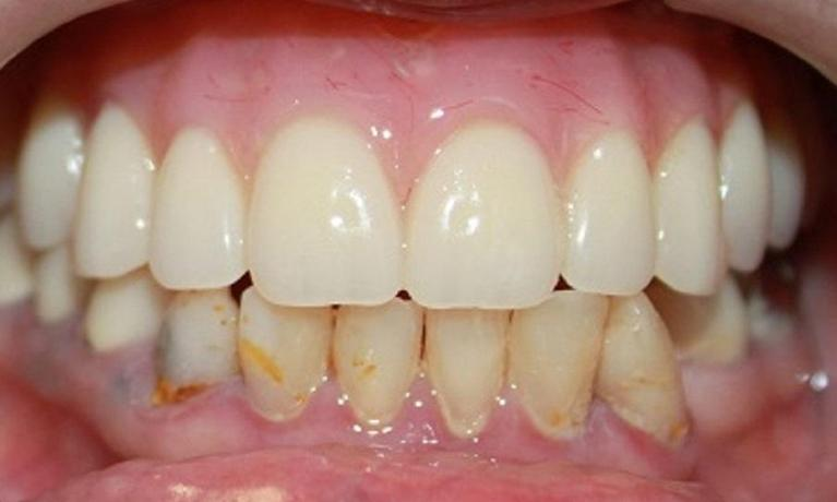 Hybrid-Denture-After-Image