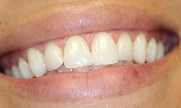 KoR-Teeth-Whitening-After-Image