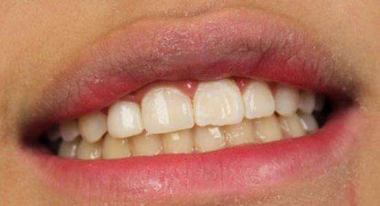 Labial-Veneer-After-Image