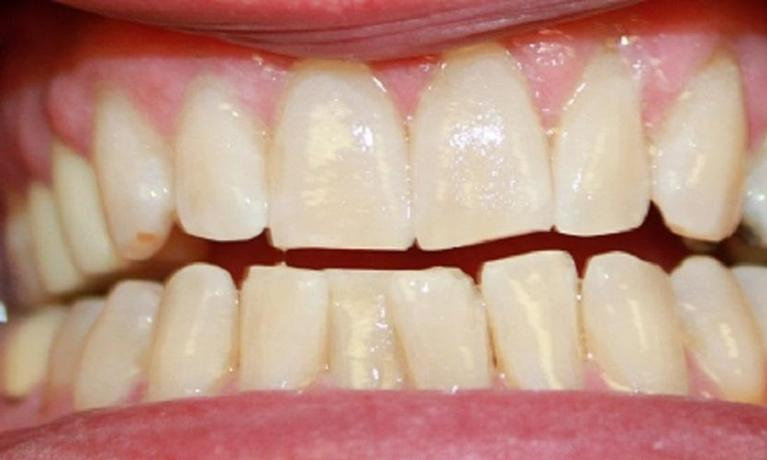 Laser-Whitening-After-Image