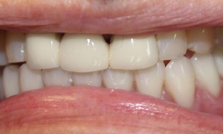 Overdenture-After-Image