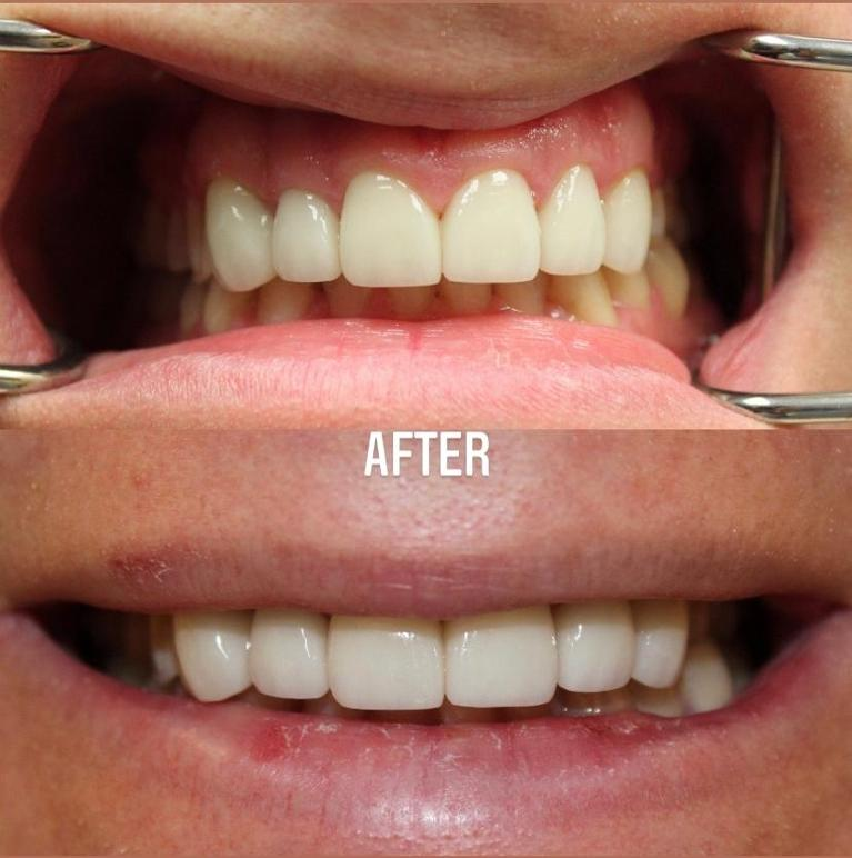 Porcelain-Veneers-case-with-9-years-follow-up-photos-After-Image