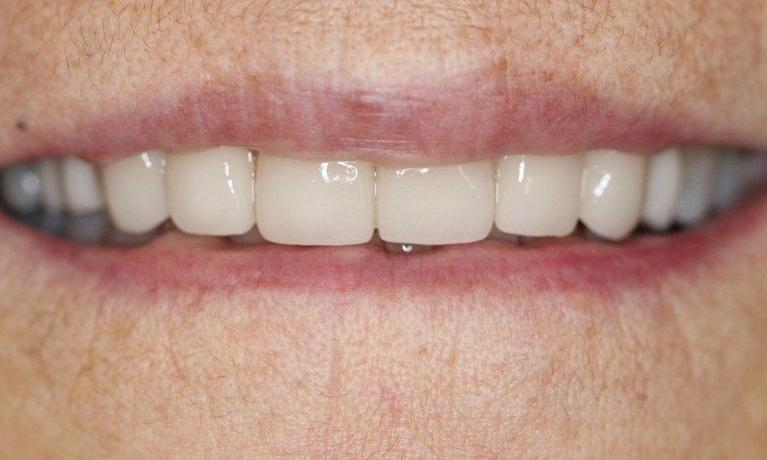 Smile-Restoration-with-Crowns-Veneers-and-Implants-After-Image