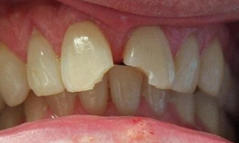 Cosmetic-Dentistry-Before-Image