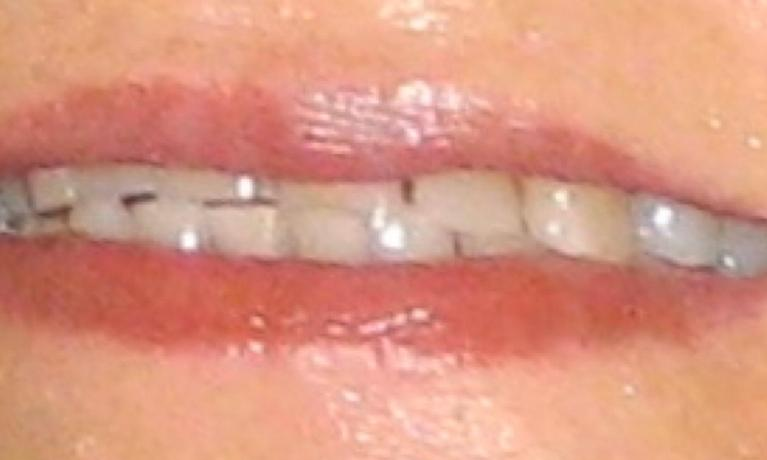Front-Teeth-Restoration-with-Crowns-Before-Image