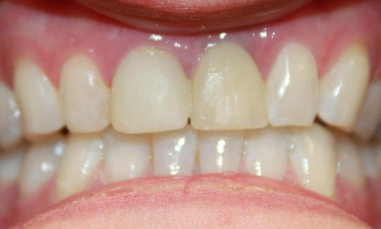 Implant-Crown-and-Porcelain-Crown-Before-Image