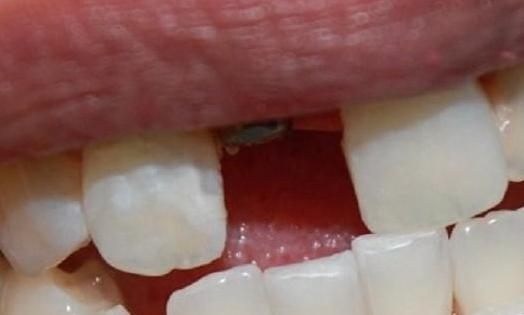 Implant-Crown-Before-Image