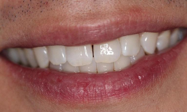 KoR-Teeth-Whitening-Before-Image