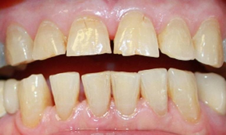 Laser-Whitening-Before-Image