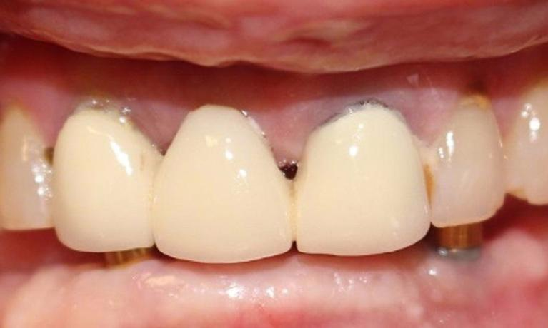 Overdenture-Before-Image