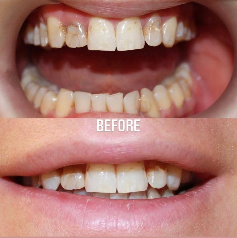 Porcelain-Veneers-case-with-9-years-follow-up-photos-Before-Image