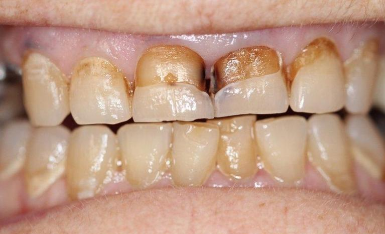 Smile-Restoration-with-Crowns-Veneers-and-Implants-Before-Image